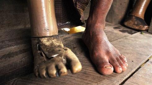 Le fléau des mines antipersonnel en Birmanie